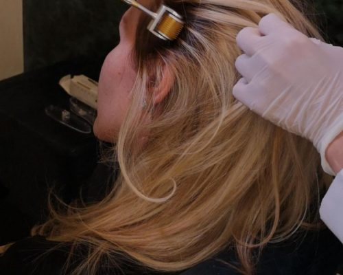 Tratamentul cu laser pentru creșterea părului.