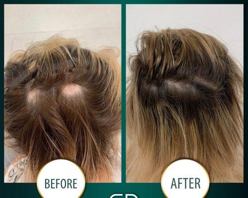 Tratamentul cu laser pentru creșterea părului
